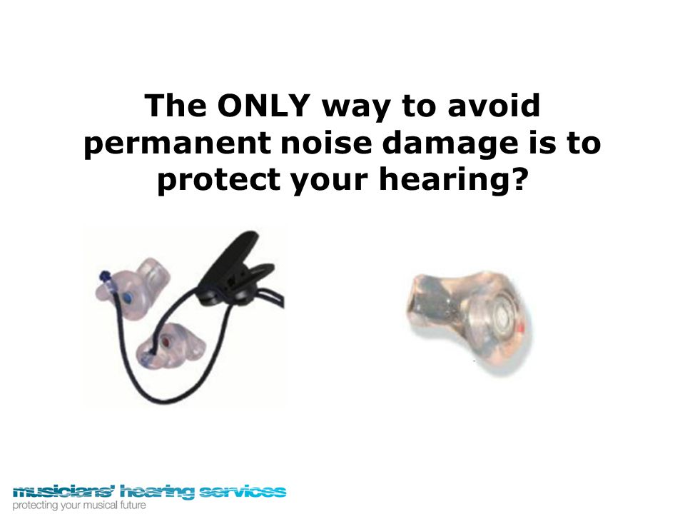 The ONLY way to avoid permanent noise damage is to protect your hearing?
