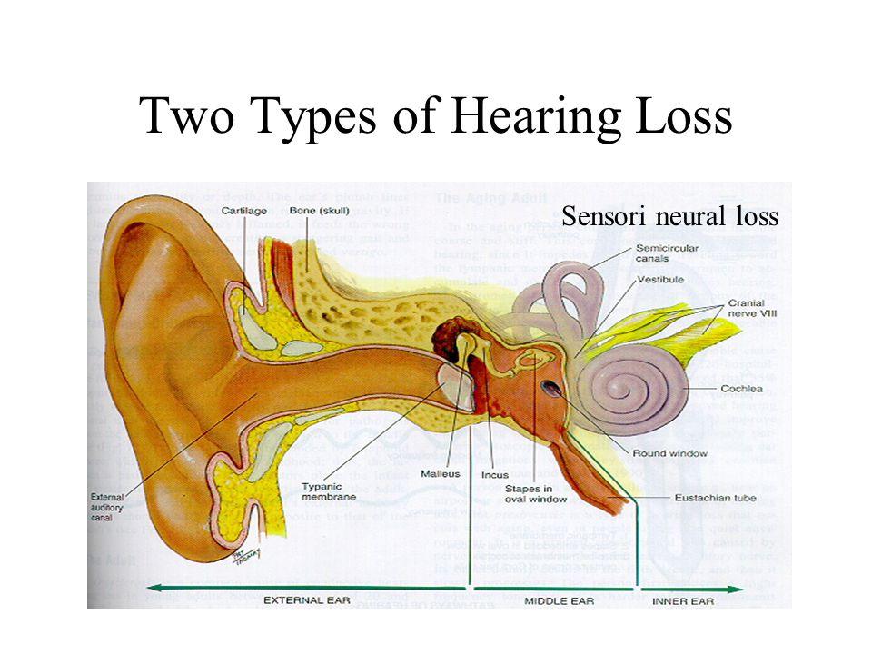 Two Types of Hearing Loss Sensori neural loss