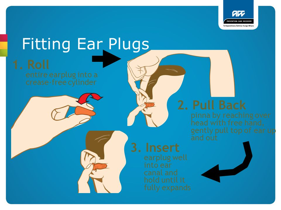 Fitting Ear Plugs 1. Roll entire earplug into a crease-free cylinder 2. Pull Back pinna by reaching over head with free hand, gently pull top of ear u
