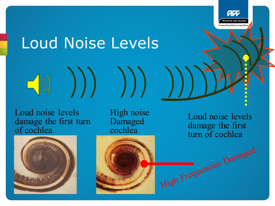 Loud Noise Levels Loud noise levels damage the first turn of cochlea High noise Damaged cochlea High Frequencies Damaged