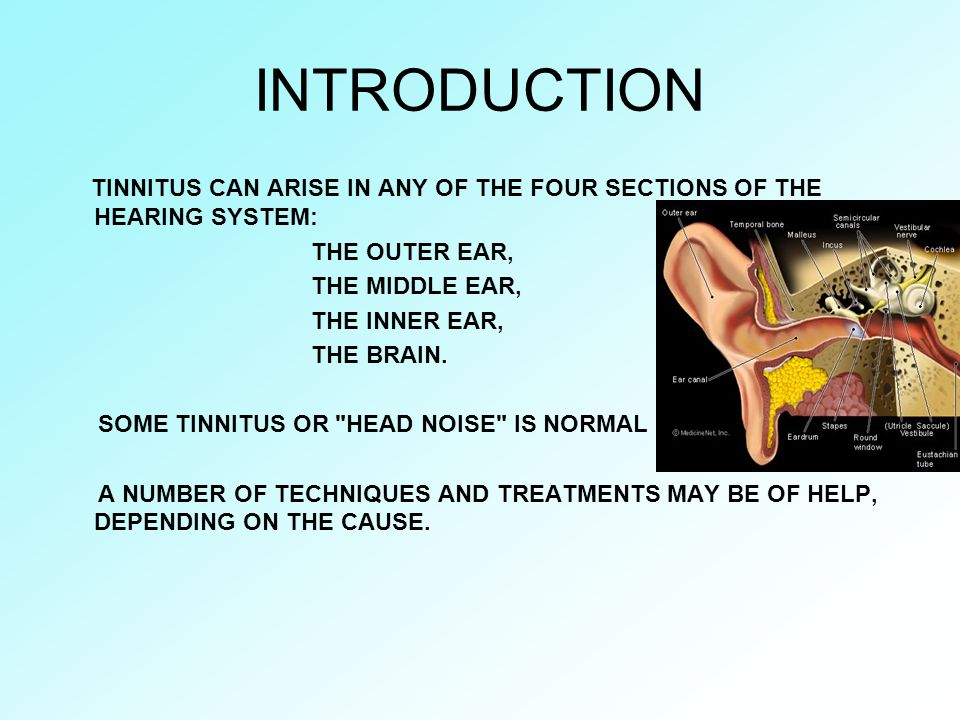 INTRODUCTION TINNITUS CAN ARISE IN ANY OF THE FOUR SECTIONS OF THE HEARING SYSTEM: THE OUTER EAR, THE MIDDLE EAR, THE INNER EAR, THE BRAIN. SOME TINNI