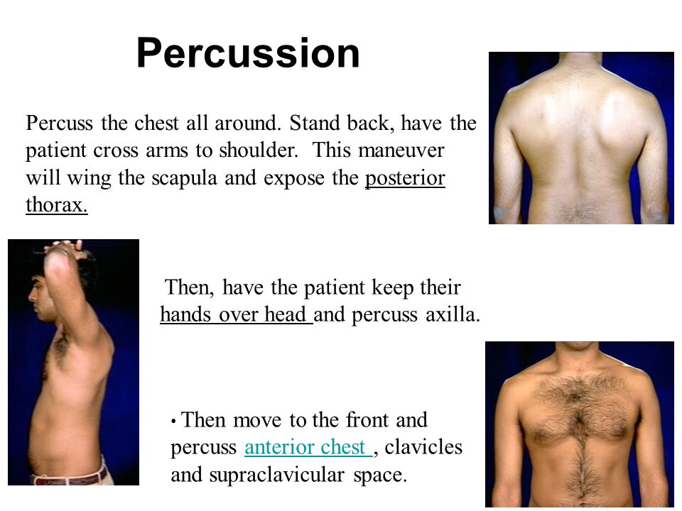 Percuss the chest all around. Stand back, have the patient cross arms to shoulder. This maneuver will wing the scapula and expose the posterior thorax