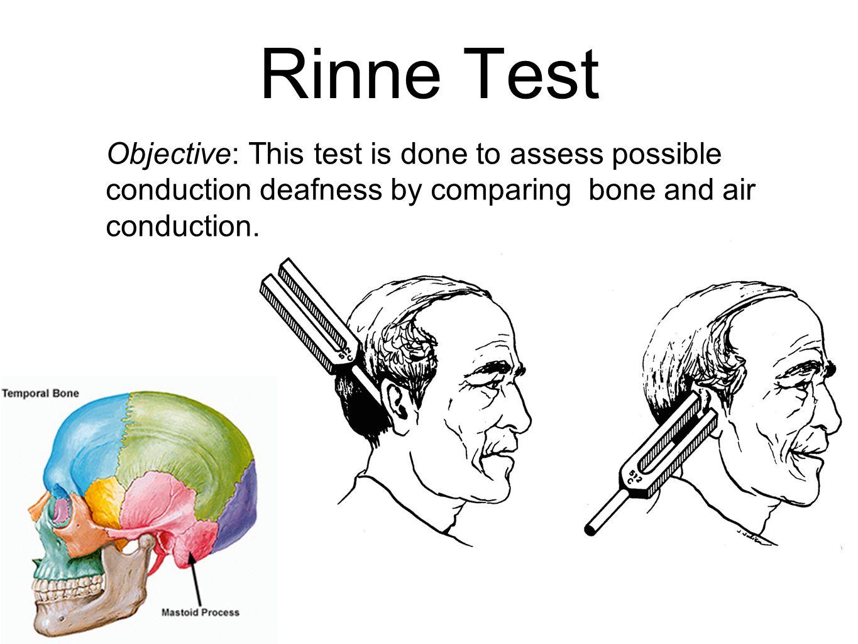Conductive Hearing Loss Sensorineural Hearing Loss