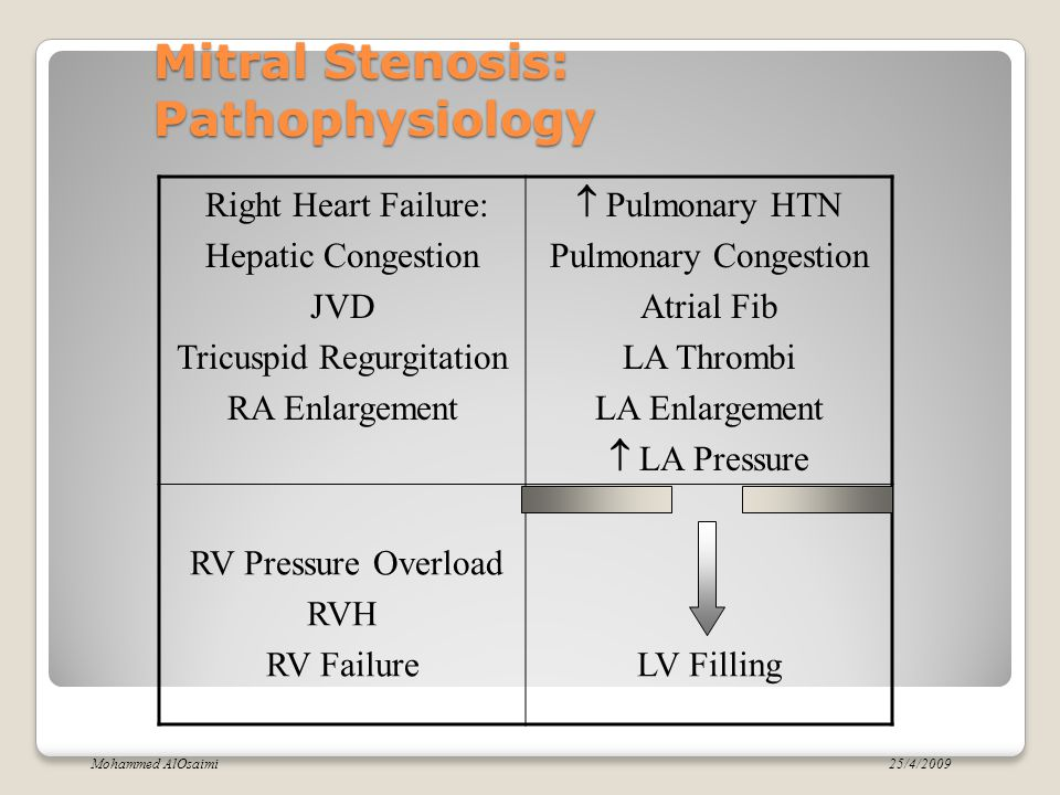 Mitral Stenosis: Symptoms Breathlessness Fatigue Oedema, ascites Palpitation Haemoptysis Cough Chest pain mitral facies or malar flush Symptoms of thromboembolic complications (e.g.