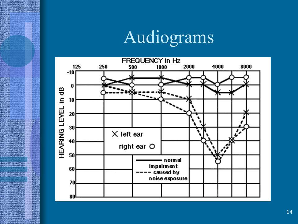 Audiograms 14