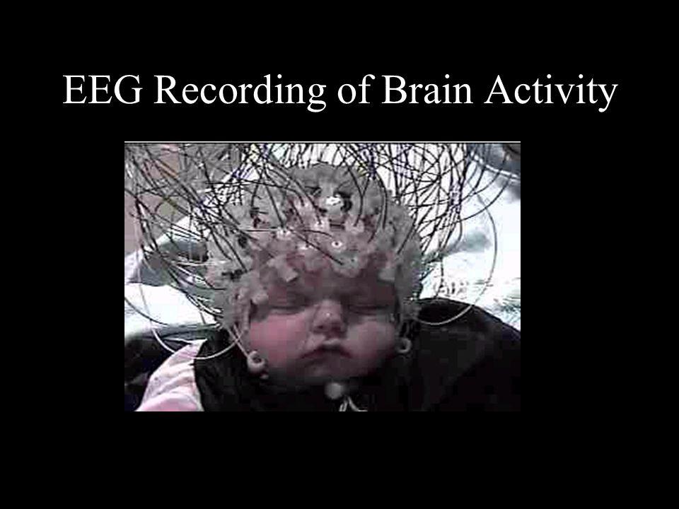 EEG Recording of Brain Activity