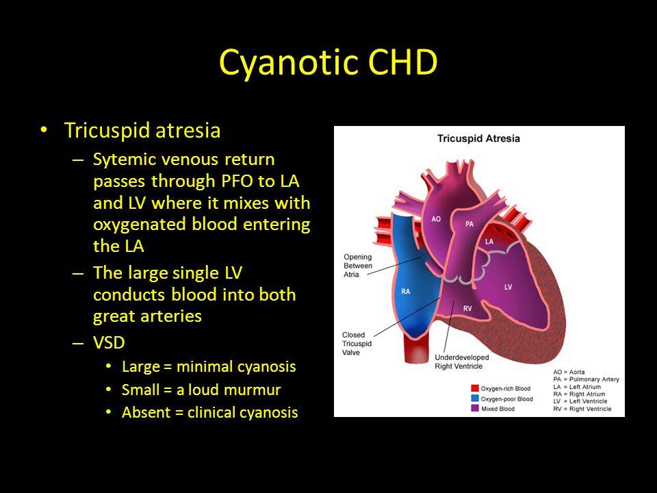 Cyanotic CHD Total Anomalous Pulmonary Venous Connection – PFO/ASD allows blood to enter the left heart – If pulm.