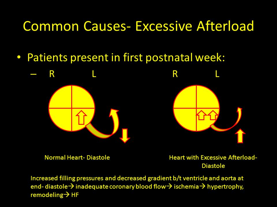 Common Causes- Excessive Afterload Examples: – Mitral stenosis – Aortic stenosis – Coarctation of the aorta