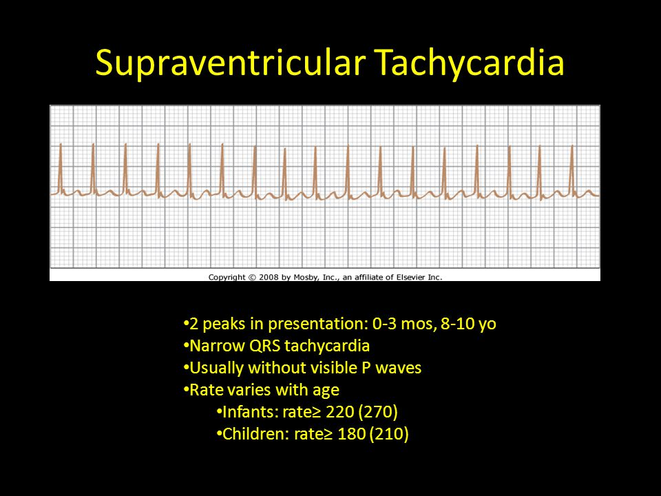Supraventricular Tachycardia 2 peaks in presentation: 0-3 mos, 8-10 yo Narrow QRS tachycardia Usually without visible P waves Rate varies with age Inf