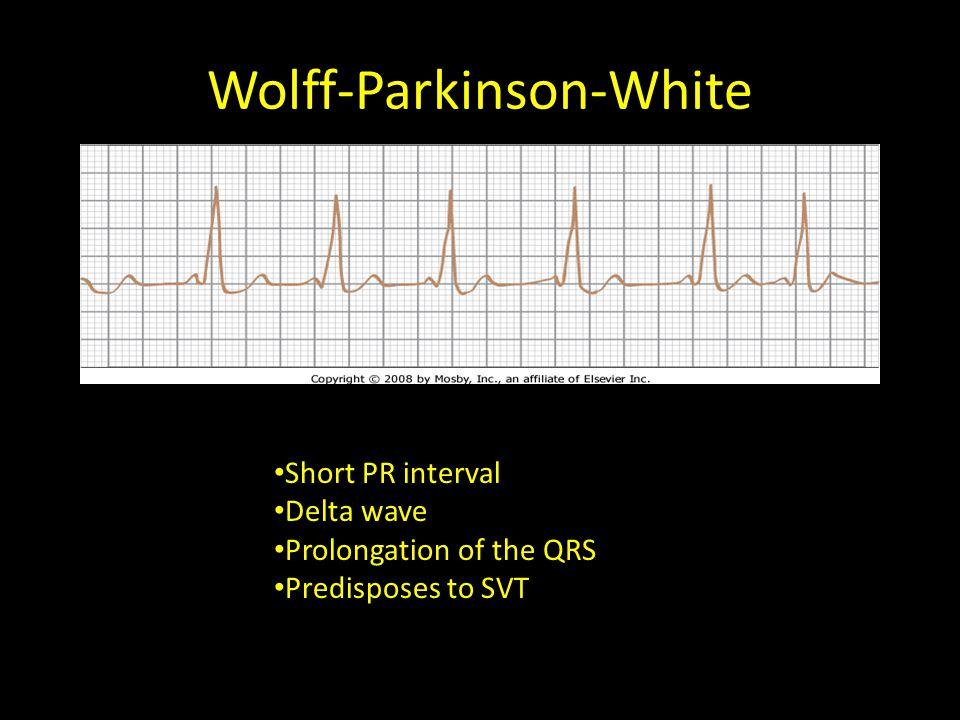 Wolff-Parkinson-White Short PR interval Delta wave Prolongation of the QRS Predisposes to SVT