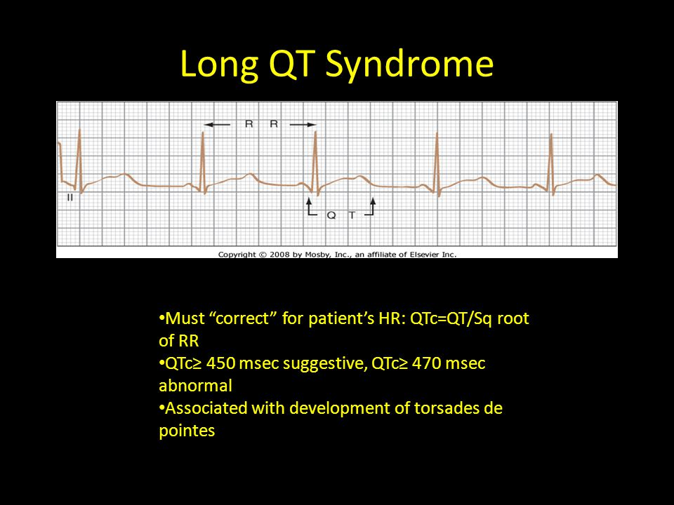 """Long QT Syndrome Must """"correct"""" for patient's HR: QTc=QT/Sq root of RR QTc≥ 450 msec suggestive, QTc≥ 470 msec abnormal Associated with development of"""
