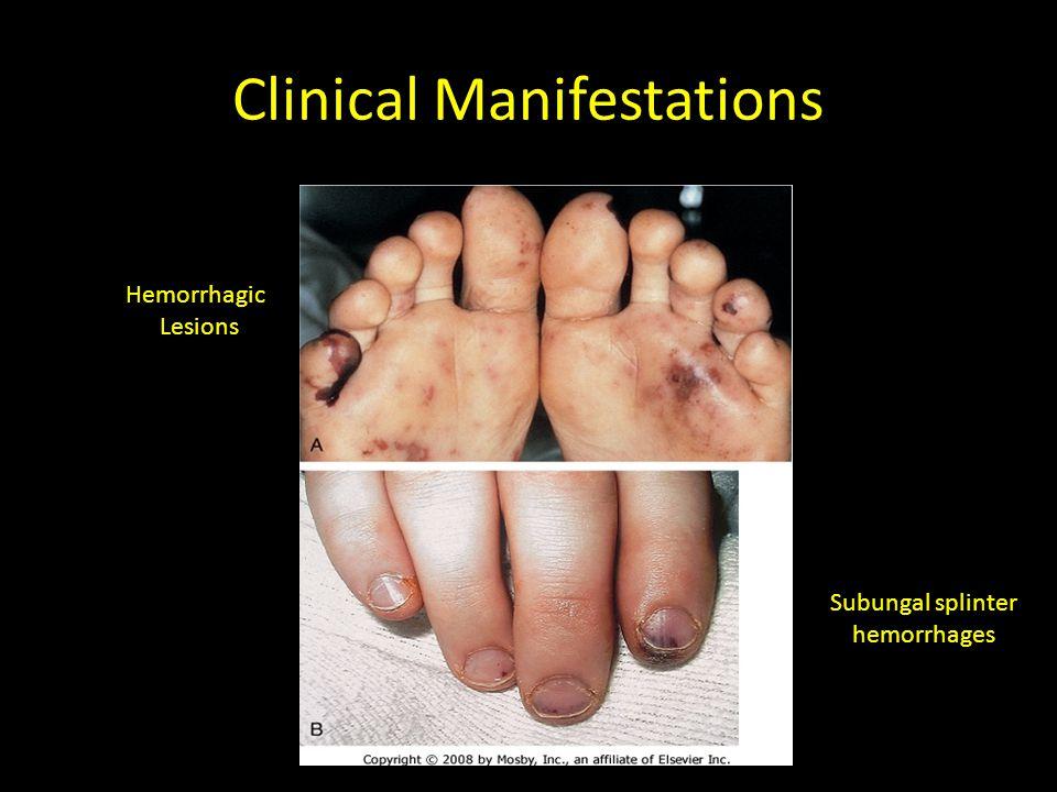 Diagnosis Clinical criteria – 2 major – 1 major, 3 minor – 5 minor
