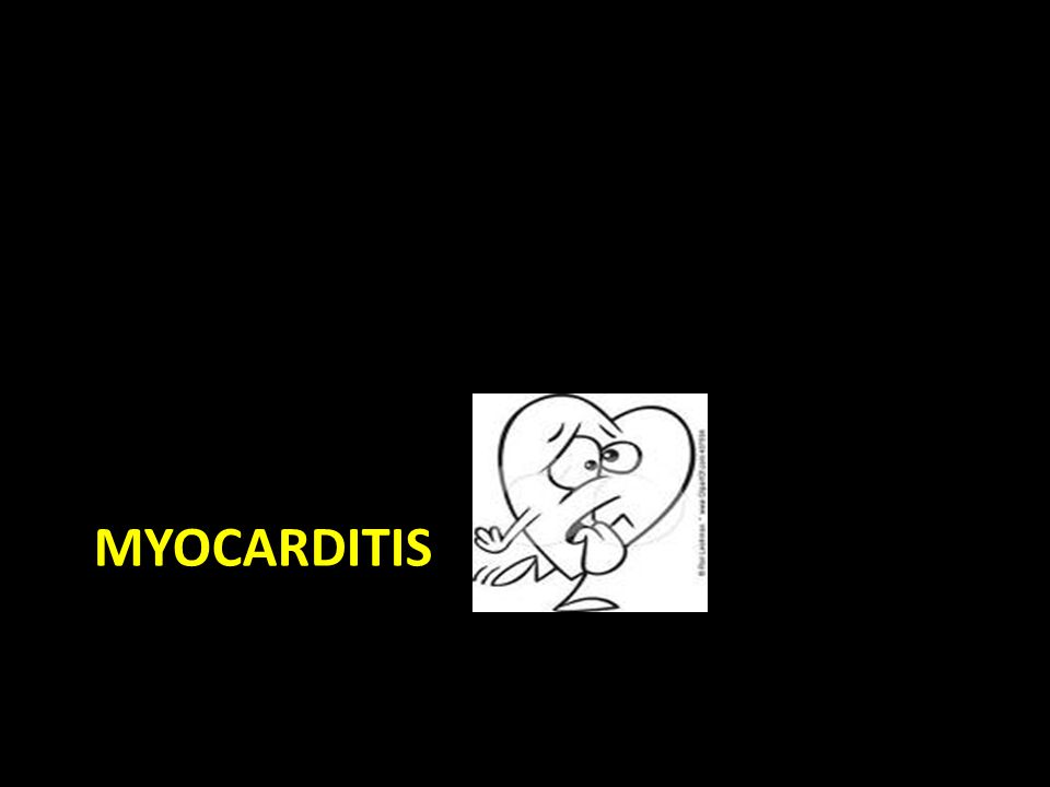 The Basics Inflammation of the cardiac myocytes Clinically evident myocarditis infrequent Follows a non-specific respiratory, flulike, or GI illness with fever – Most common causes: Viruses!.