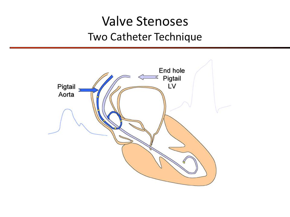Valve Stenoses Two Catheter Technique
