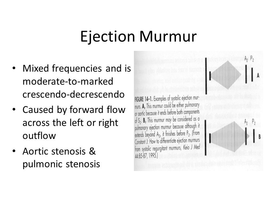 Ejection Murmur Mixed frequencies and is moderate-to-marked crescendo-decrescendo Caused by forward flow across the left or right outflow Aortic stenosis & pulmonic stenosis