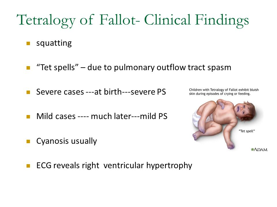 Tetralogy of Fallot- Clinical Findings squatting Tet spells – due to pulmonary outflow tract spasm Severe cases ---at birth---severe PS Mild cases ---- much later---mild PS Cyanosis usually ECG reveals right ventricular hypertrophy