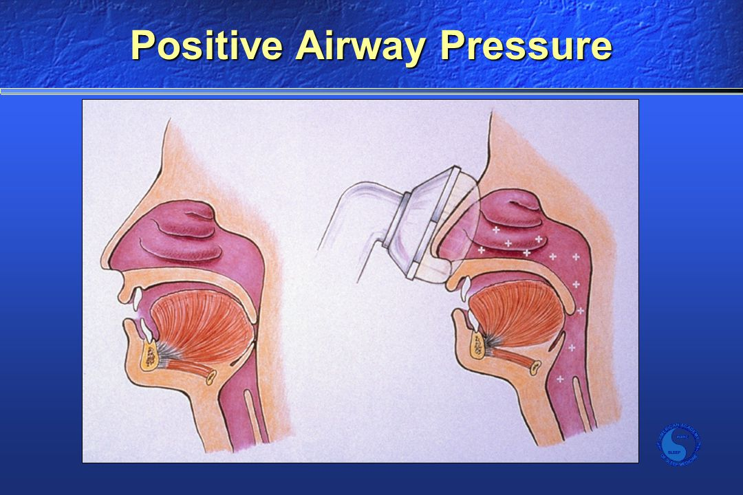 Positive Airway Pressure