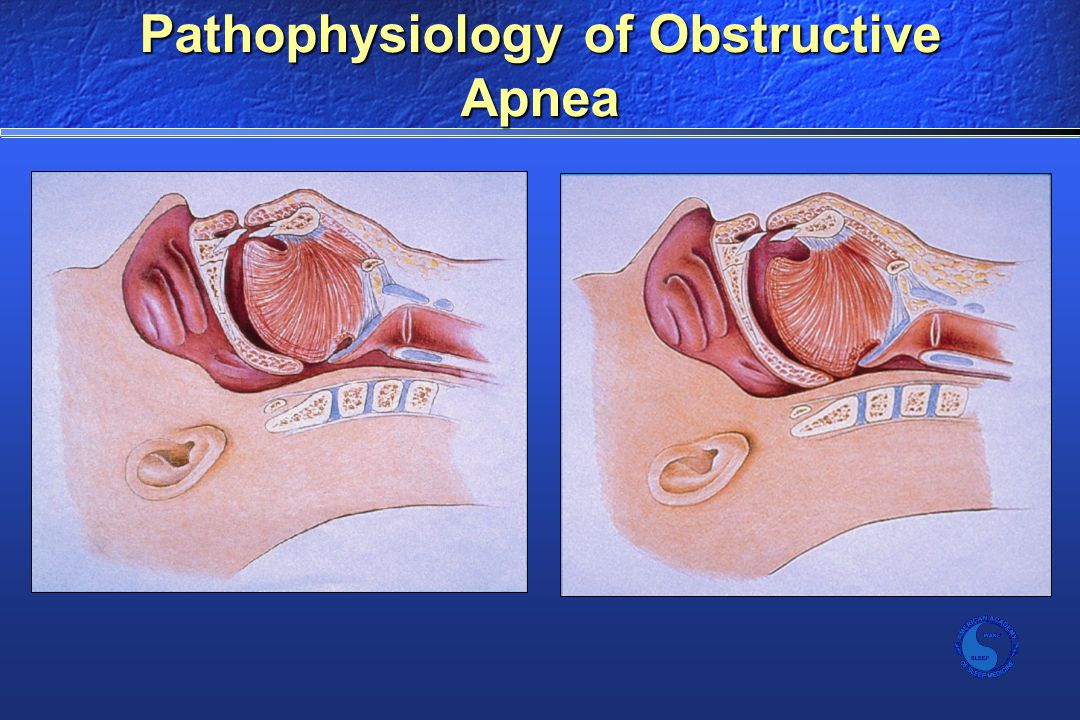 Pathophysiology of Obstructive Apnea