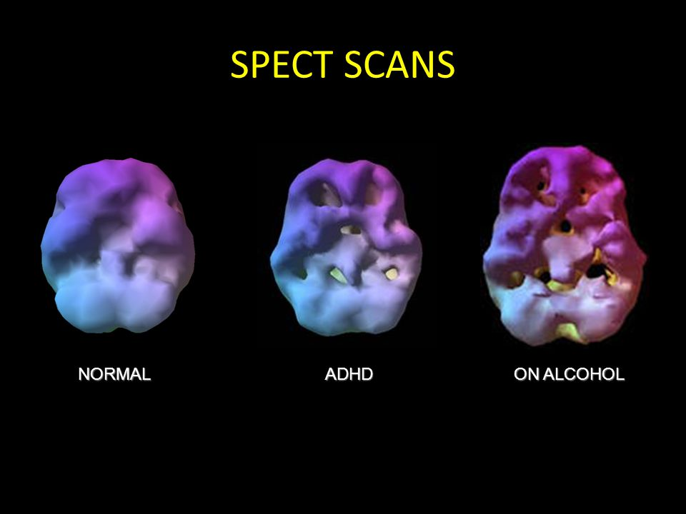 SPECT SCANS NORMALADHD ON ALCOHOL