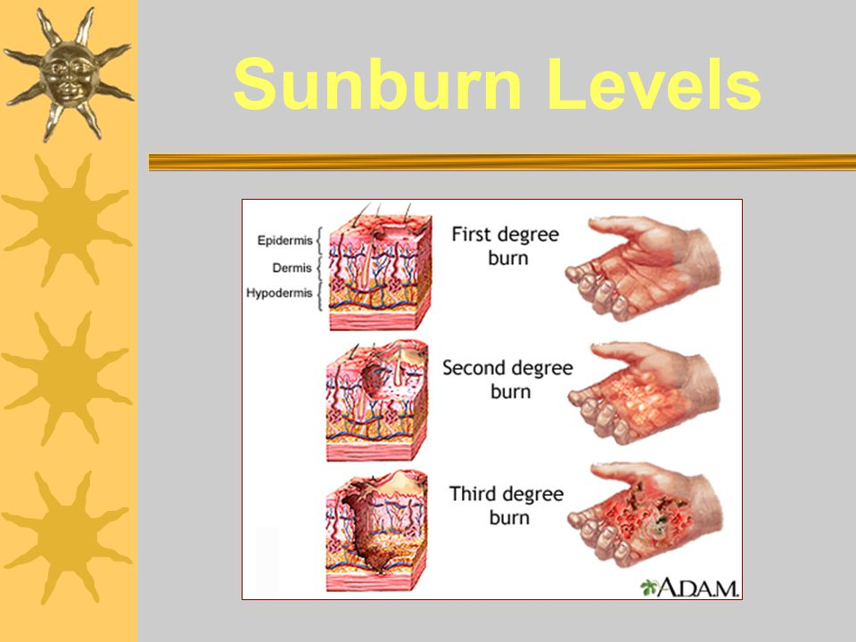 Sunburn Levels