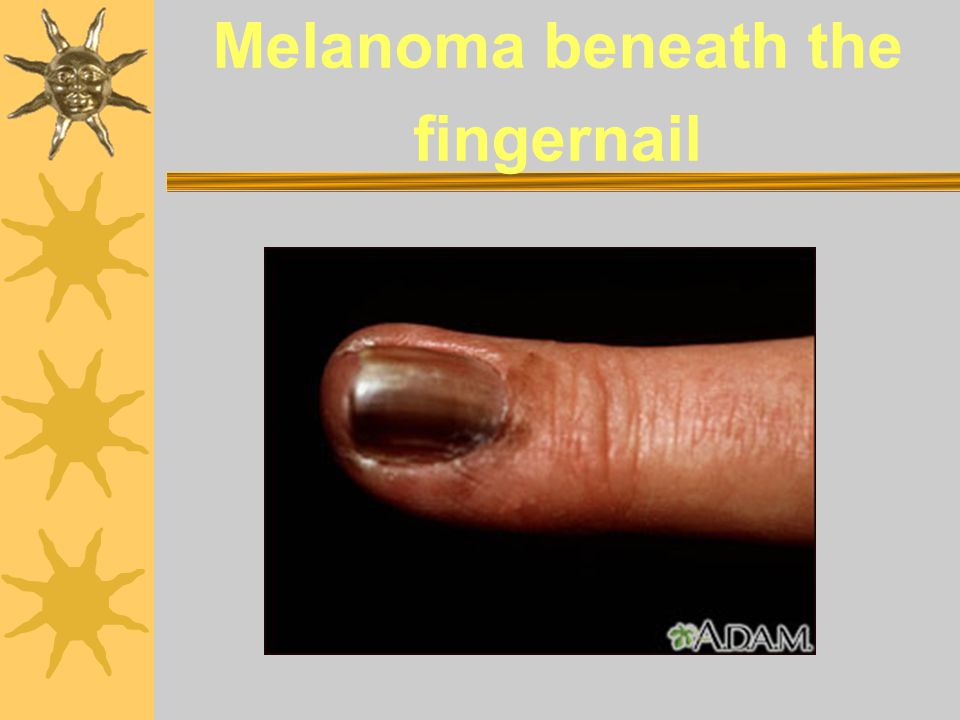 Melanoma beneath the fingernail