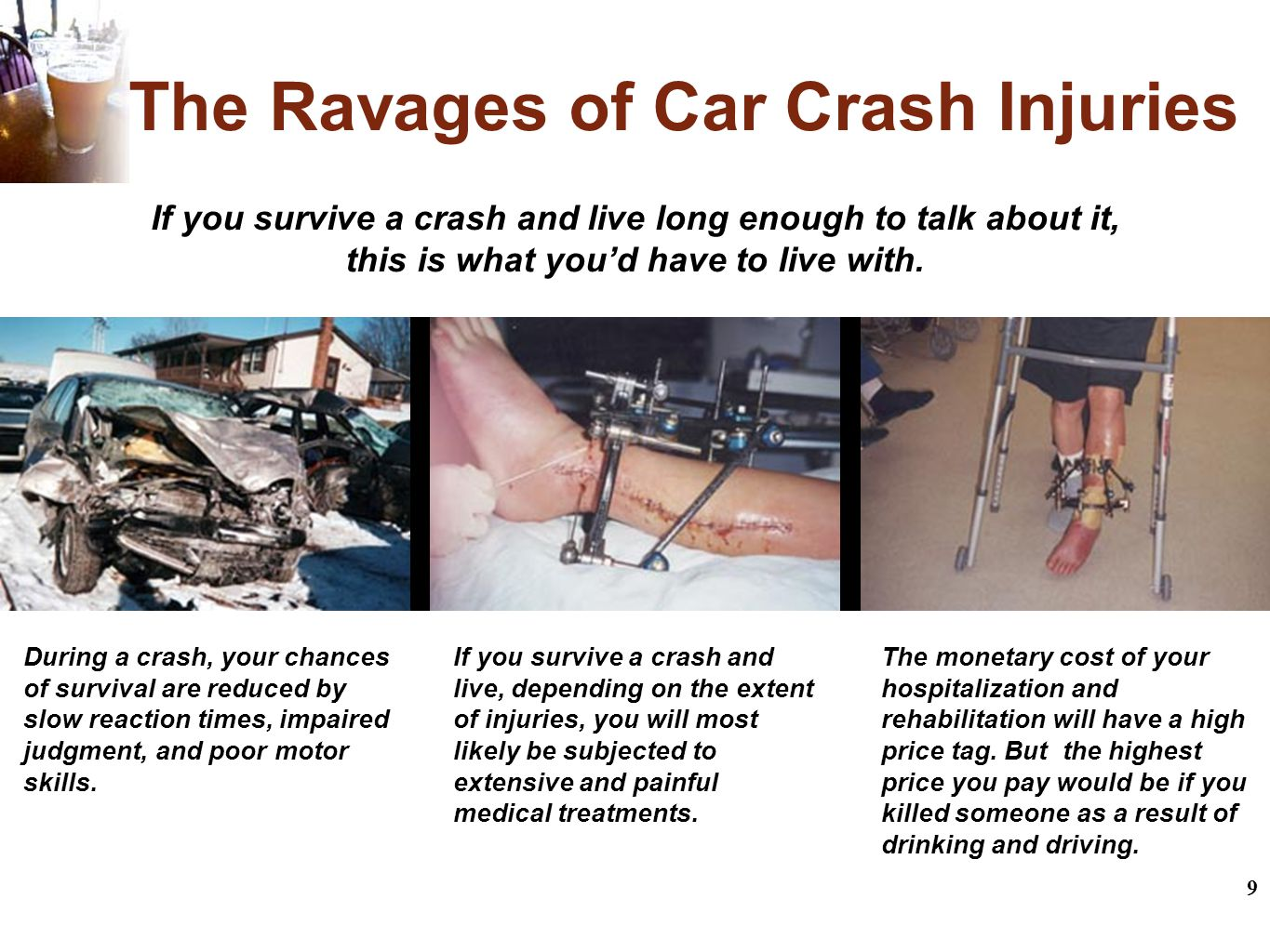 9 The Ravages of Car Crash Injuries If you survive a crash and live long enough to talk about it, this is what you'd have to live with.