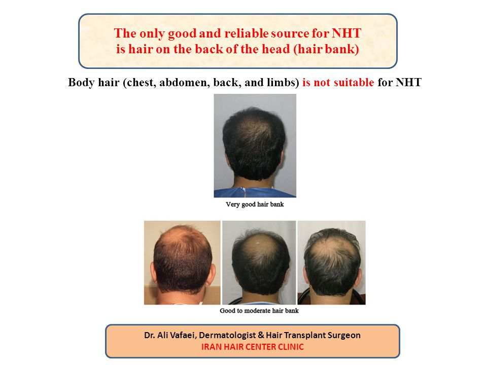 The only good and reliable source for NHT is hair on the back of the head (hair bank) Body hair (chest, abdomen, back, and limbs) is not suitable for