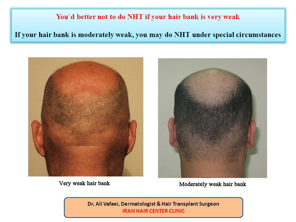 You`d better not to do NHT if your hair bank is very weak If your hair bank is moderately weak, you may do NHT under special circumstances Dr. Ali Vaf