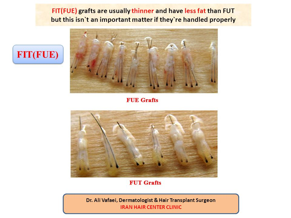 FIT(FUE) grafts are usually thinner and have less fat than FUT but this isn`t an important matter if they`re handled properly Dr. Ali Vafaei, Dermatol