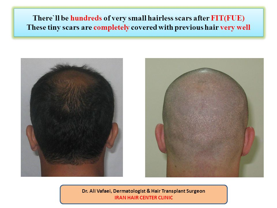 There`ll be hundreds of very small hairless scars after FIT(FUE) These tiny scars are completely covered with previous hair very well Dr. Ali Vafaei,