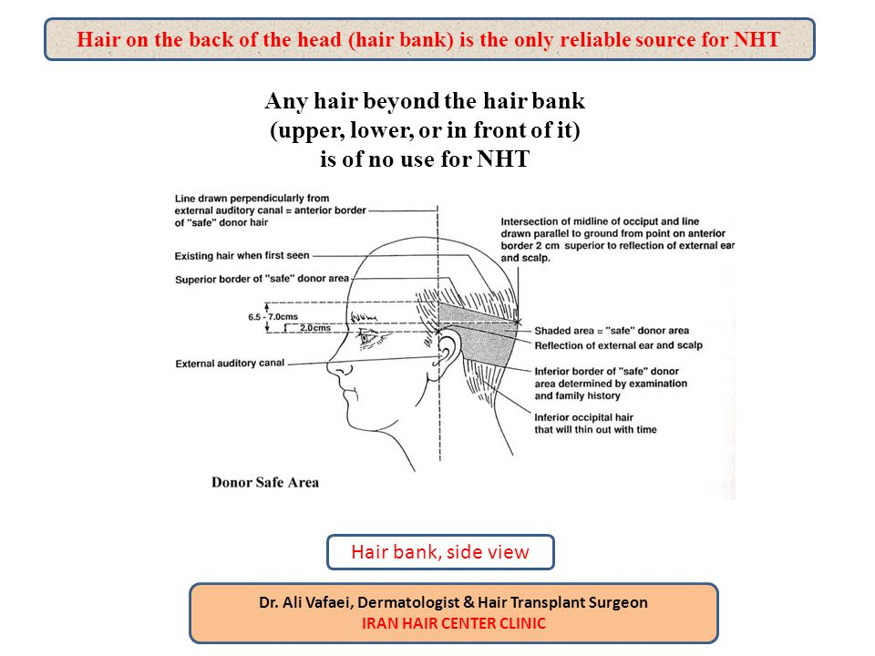 As it`s told before, when graft harvesting in FIT (FUE) is finished The way of putting them in bald area is the same as FUT As it`s told before, when graft harvesting in FIT (FUE) is finished The way of putting them in bald area is the same as FUT Dr.