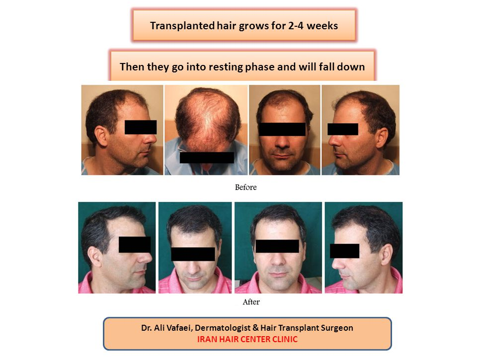 Transplanted hair grows for 2-4 weeks Then they go into resting phase and will fall down Dr. Ali Vafaei, Dermatologist & Hair Transplant Surgeon IRAN