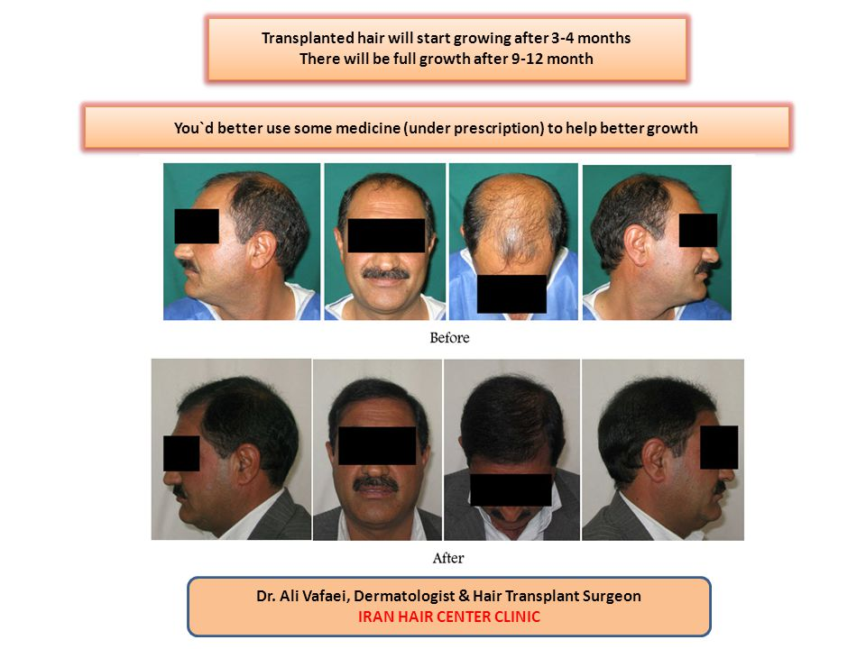 Transplanted hair will start growing after 3-4 months There will be full growth after 9-12 month Transplanted hair will start growing after 3-4 months
