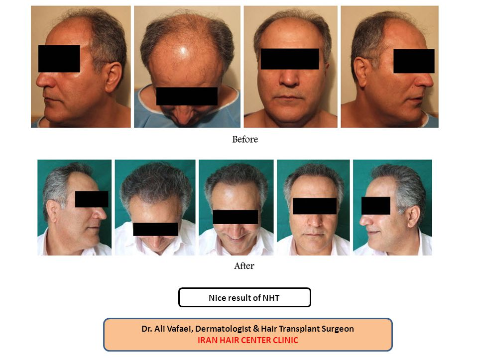 Dr. Ali Vafaei, Dermatologist & Hair Transplant Surgeon IRAN HAIR CENTER CLINIC Nice result of NHT