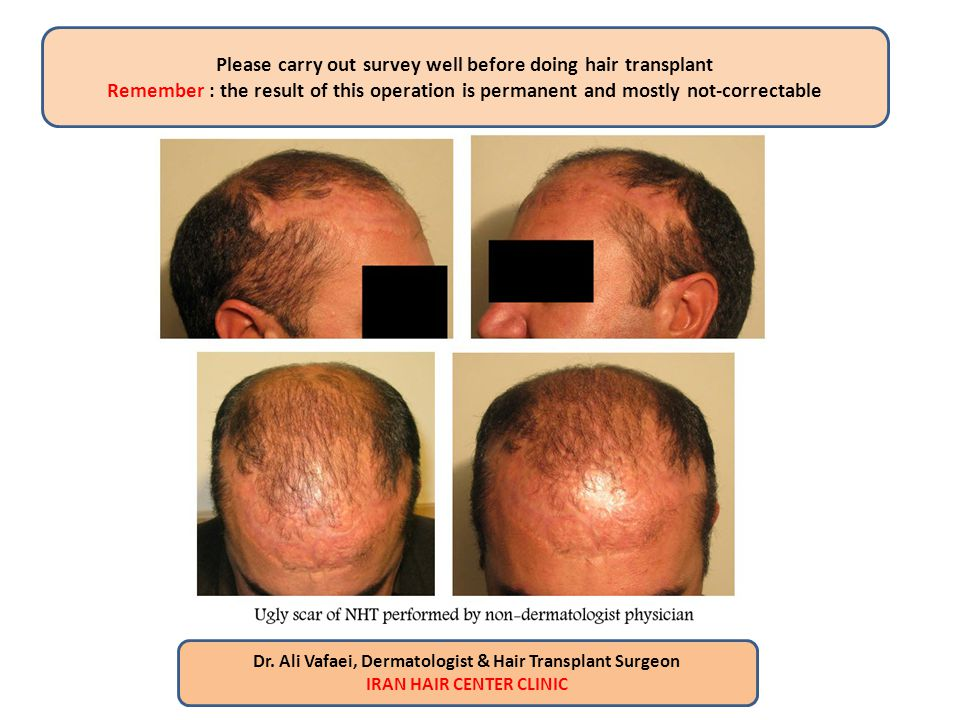 The only good and reliable source for NHT is hair on the back of the head (hair bank) Body hair (chest, abdomen, back, and limbs) is not suitable for NHT Dr.