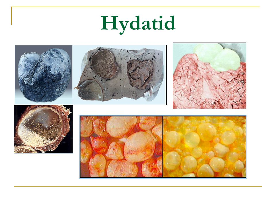 Hydatid