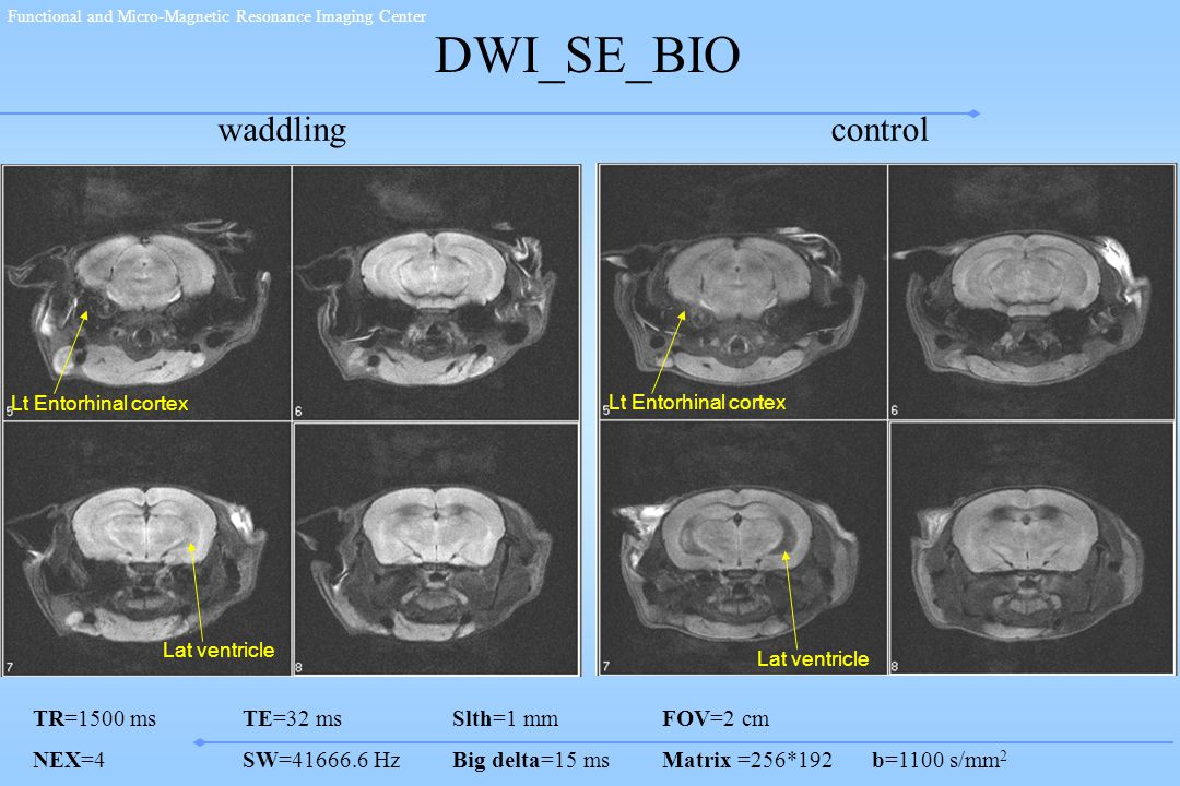 Functional and Micro-Magnetic Resonance Imaging Center DWI_SE_BIO TR=1500 msTE=32 msSlth=1 mmFOV=2 cm NEX=4SW=41666.6 HzBig delta=15 msMatrix =256*192b=1100 s/mm 2 controlwaddling Lt Entorhinal cortex Lat ventricle