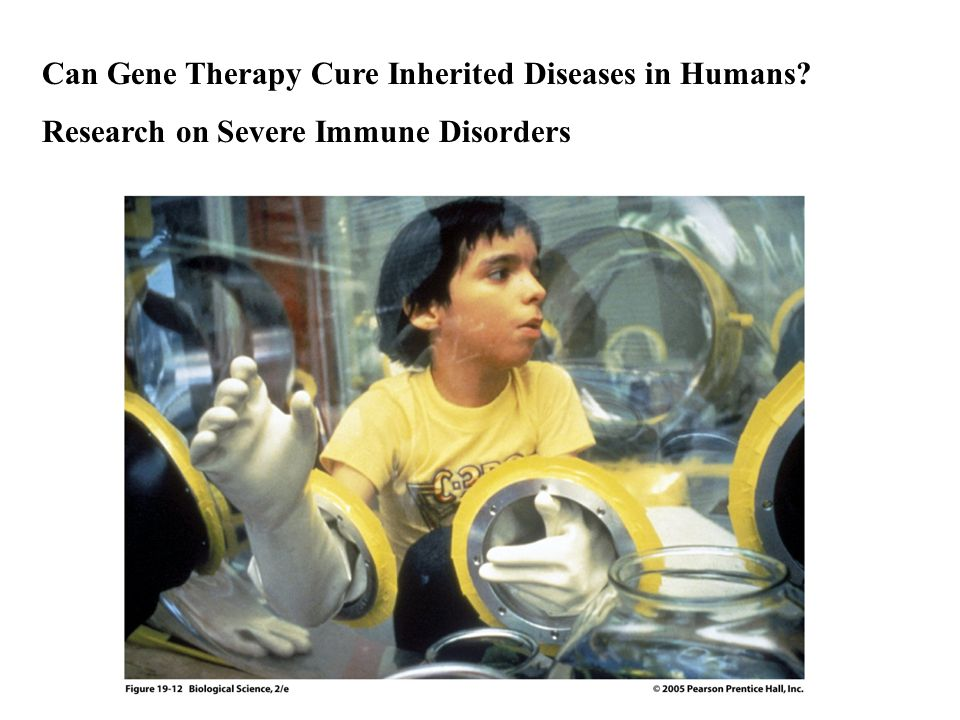 Can Gene Therapy Cure Inherited Diseases in Humans? Research on Severe Immune Disorders