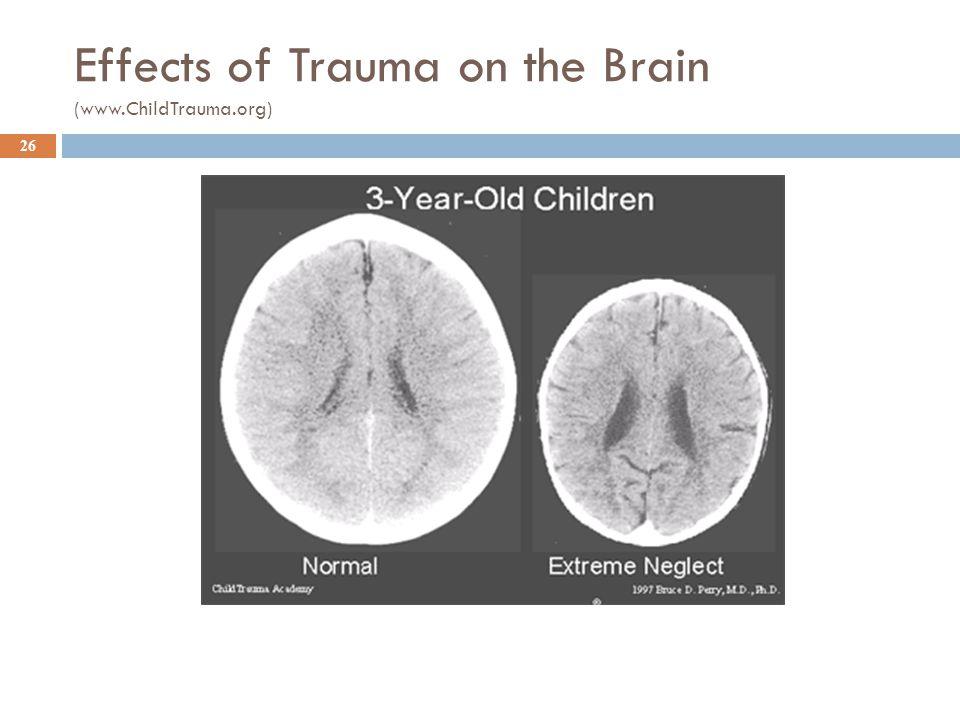 Effects of Trauma on the Brain (www.ChildTrauma.org) 26