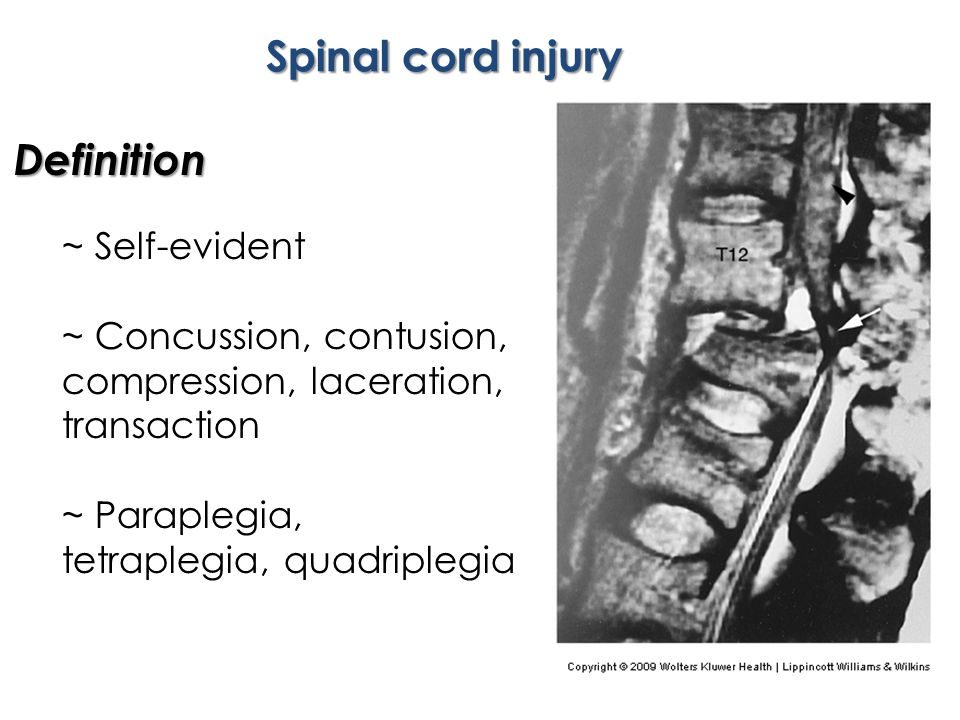Spinal cord injury Definition ~ Self-evident ~ Concussion, contusion, compression, laceration, transaction ~ Paraplegia, tetraplegia, quadriplegia