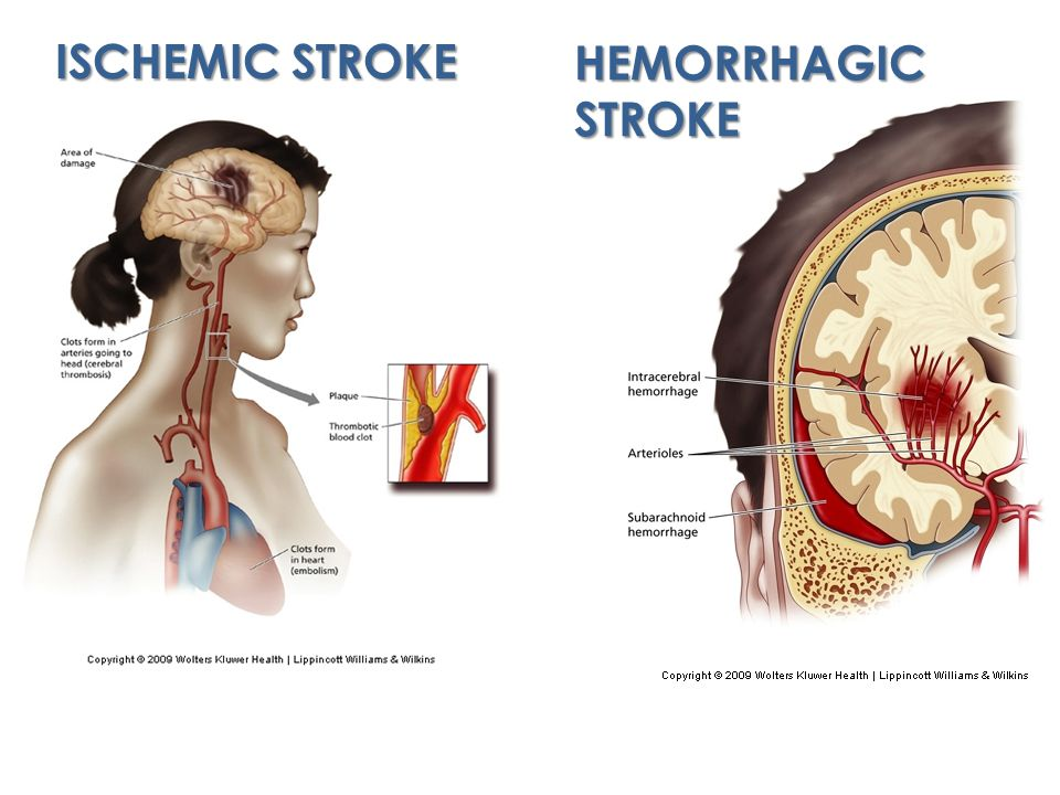 ISCHEMIC STROKE HEMORRHAGIC STROKE