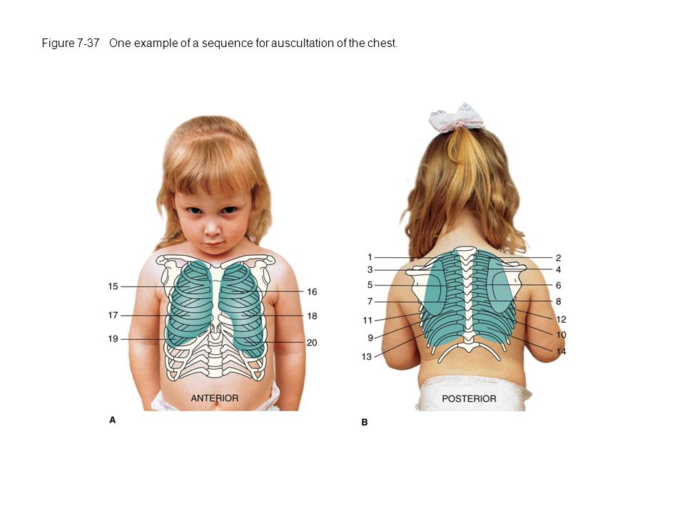 Figure 7-37 One example of a sequence for auscultation of the chest.