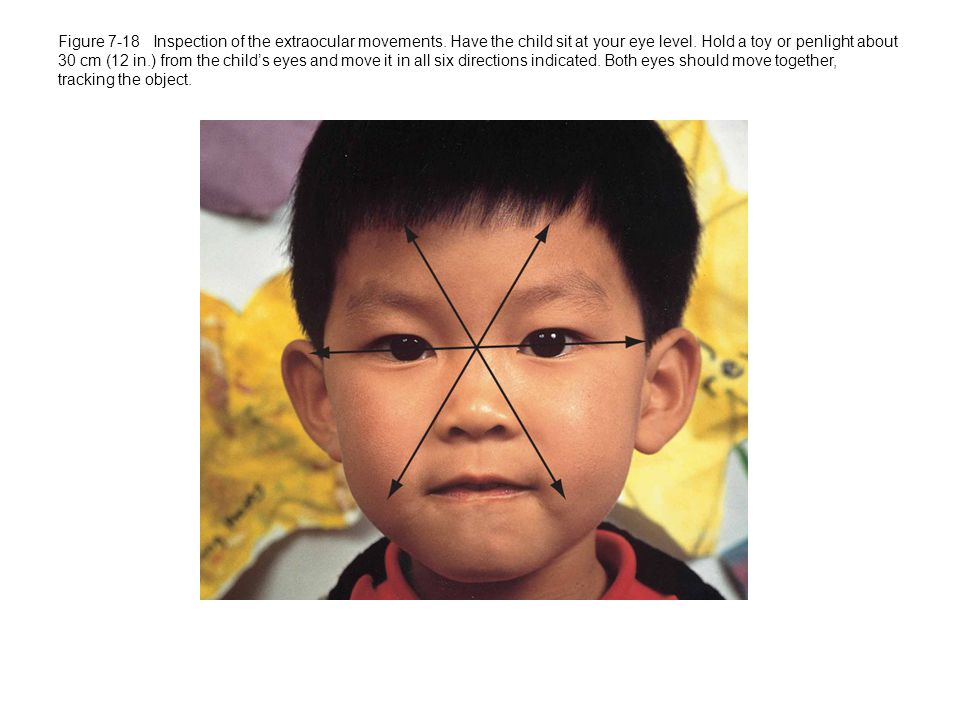 Figure 7-18 Inspection of the extraocular movements.