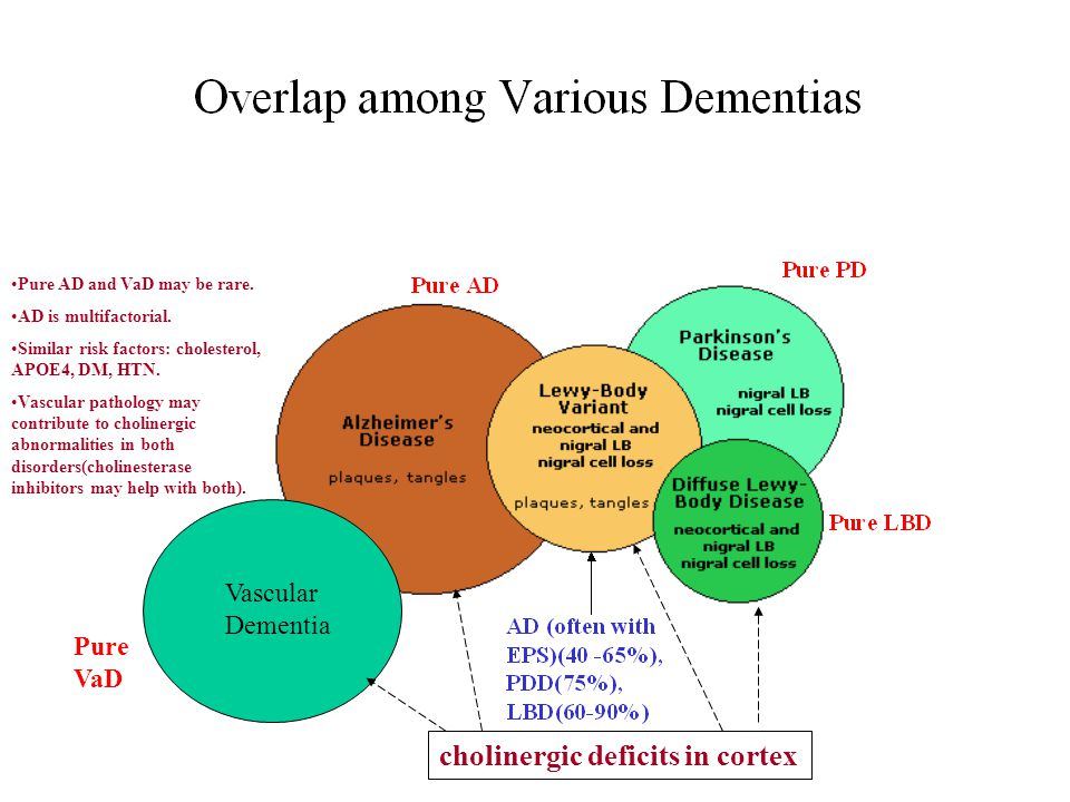Vascular Dementia Pure AD and VaD may be rare. AD is multifactorial.