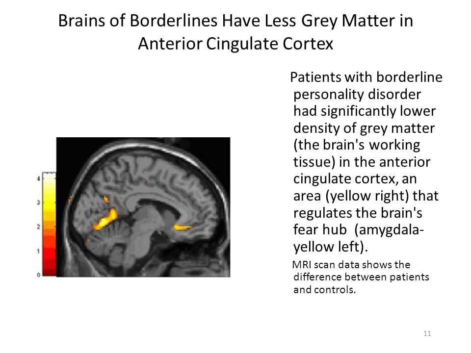 Brains of Borderlines Have Less Grey Matter in Anterior Cingulate Cortex Patients with borderline personality disorder had significantly lower density