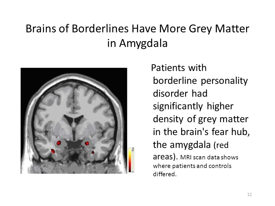 Brains of Borderlines Have More Grey Matter in Amygdala Patients with borderline personality disorder had significantly higher density of grey matter