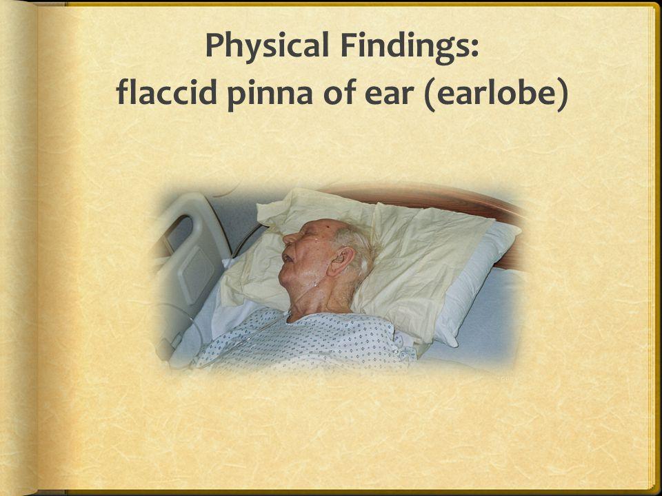 Physical Findings: flaccid pinna of ear (earlobe)