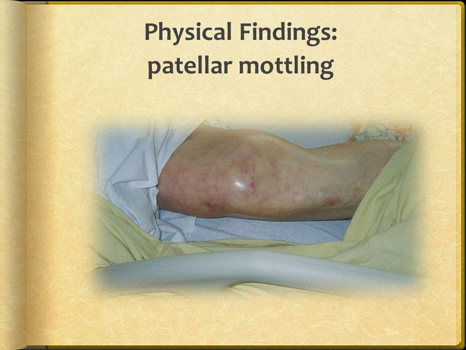Physical Findings: patellar mottling