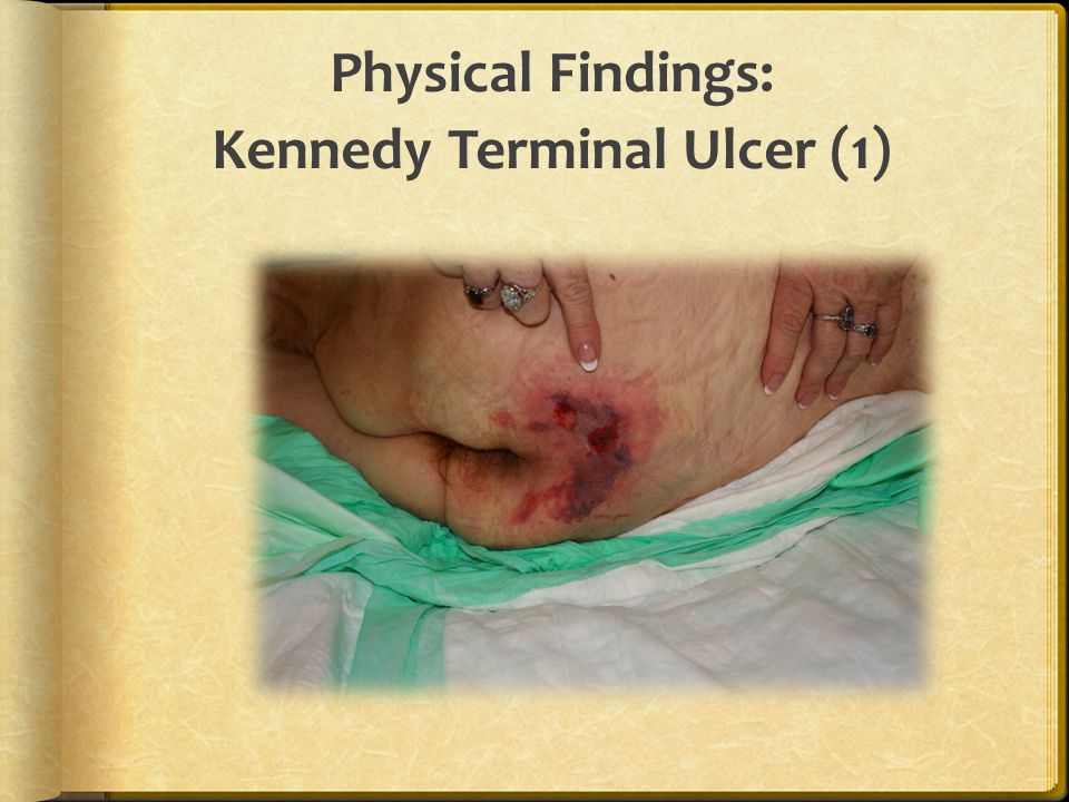 Physical Findings: Kennedy Terminal Ulcer (1)