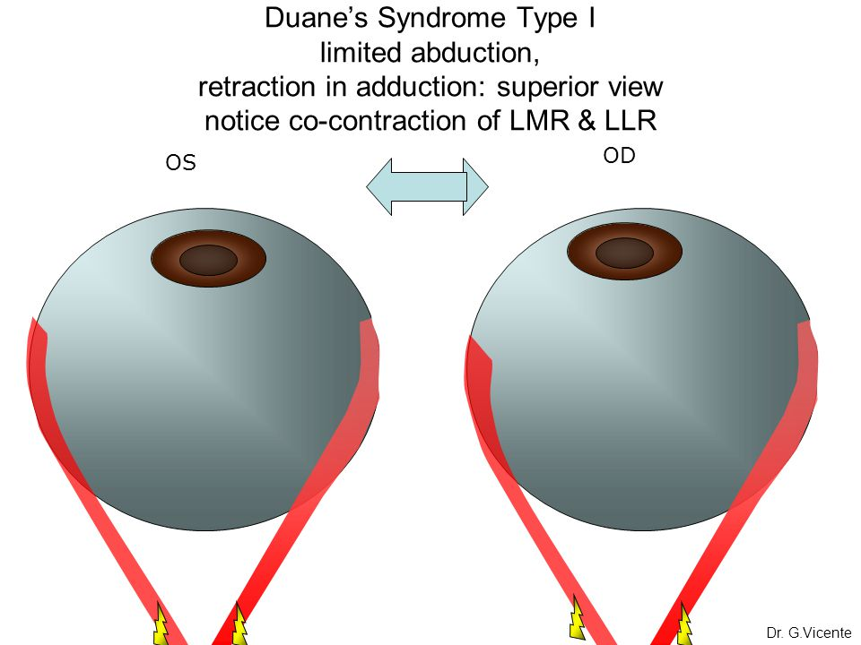 Duane's Syndrome Type I limited abduction, retraction in adduction: superior view notice co-contraction of LMR & LLR Dr. G.Vicente OS OD
